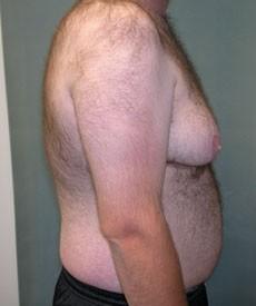Homme souffrant de gynécomastie