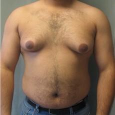 Homme atteint de gynécomastie